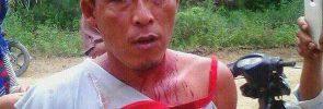 Zulkifli, petani SPI Mekar Jaya yang mengalami penganiayaan oleh polisi